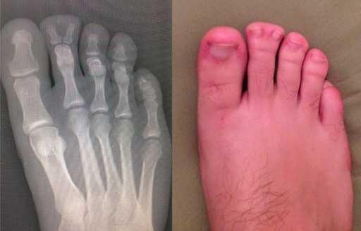二十张充满惊喜的X光照片 世界上第一张x光片是什么样的