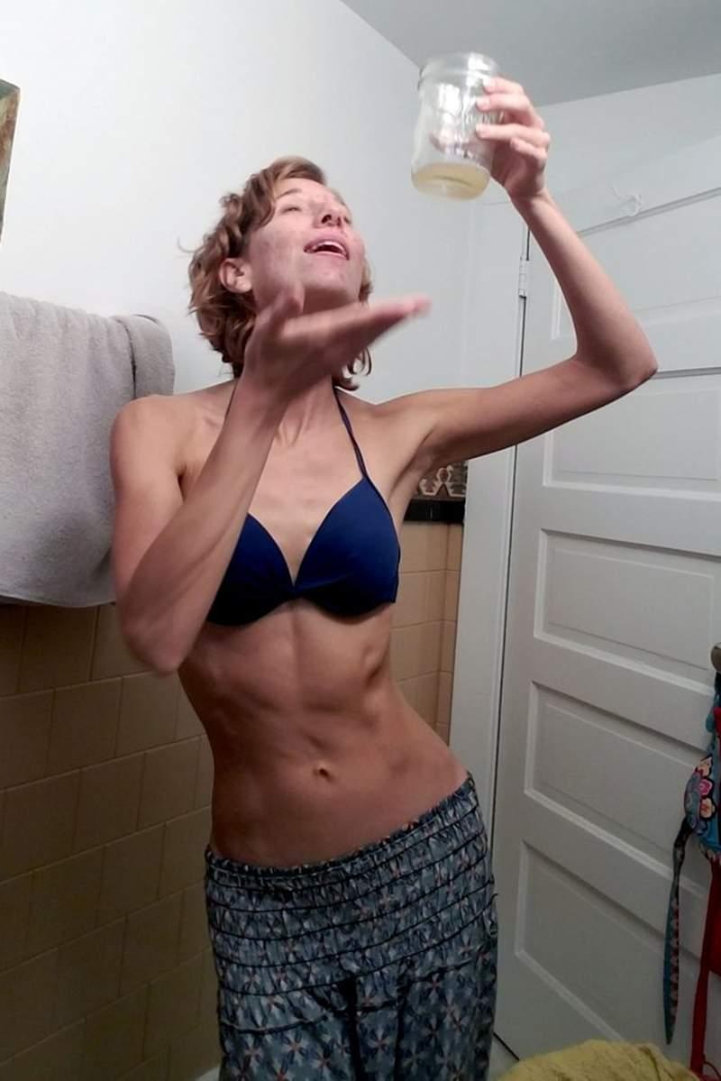 画家喝尿治痘痘皮肤变好 每天还用3杯尿洗脸瘦了27.2斤
