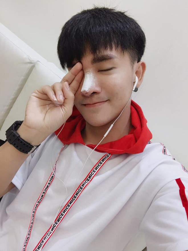泰国男子容貌太丑找工作屡遭拒绝 整容成韩国男星帅脸工作找上门